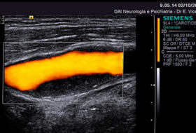 Grading Carotid Stenosis Using Ultrasonic Methods